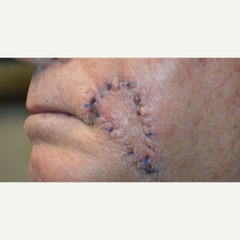 75 and up year old man treated with Scars Treatment before 2076761