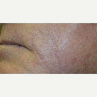 75 and up year old man treated with Scars Treatment after 2076761