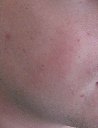 24 year old Male with Rosacea after 694718
