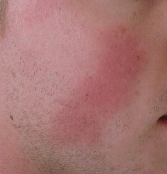 24 year old Male with Rosacea before 694718
