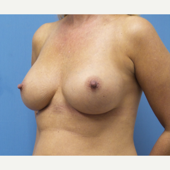 35-44 year old woman treated with Breast Augmentation after 3685266