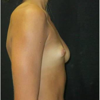 18-24 year old woman treated with Breast Reconstruction