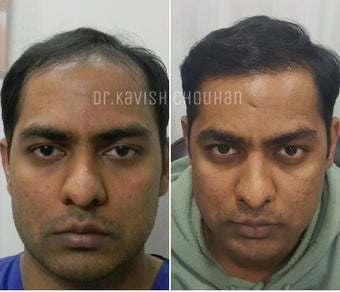 35-44 year old man treated with FUE Hair Transplant before 2827532