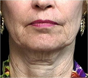 Lower facelift, necklift, CO2 laser resurfacing before 255549