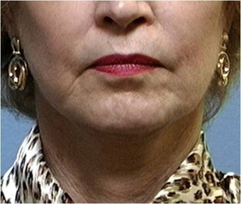Lower facelift, necklift, CO2 laser resurfacing after 255549