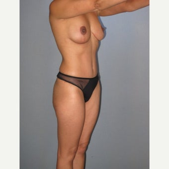 45-54 year old woman treated with Tummy Tuck 1858633