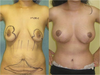 Breast Lift and Augmentation With Natural Fat before 459526