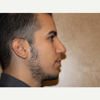 Rhinoplasty after 3325227