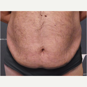 Coolsculpting treatment on the abdomen, flanks and upper chest before 3139857