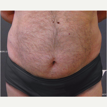 Coolsculpting treatment on the abdomen, flanks and upper chest after 3139857