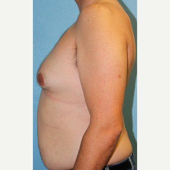 35-44 year old man treated with Male Breast Reduction before 3215373