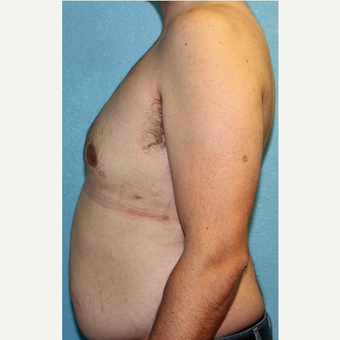 35-44 year old man treated with Male Breast Reduction after 3215373