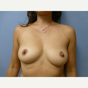 25-34 year old woman treated with Breast Augmentation via fat transfer to breasts before 1581094