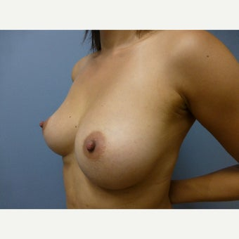 25-34 year old woman treated with Breast Augmentation via fat transfer to breasts 1581094