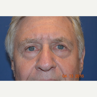 75 and up year old man treated with Eyelid Surgery after 3423562