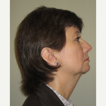 55-64 year old woman treated with Non-Surgical Neck Lift before 3140849