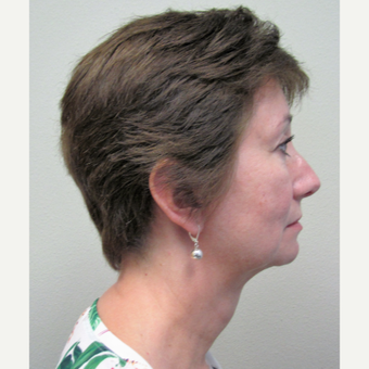 55-64 year old woman treated with Non-Surgical Neck Lift after 3140849