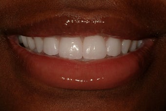 Durathin Veneers after 207709