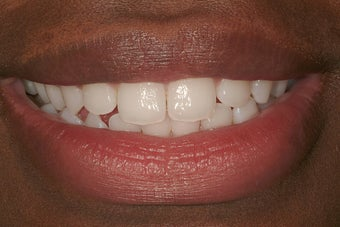 Durathin Veneers before 207709