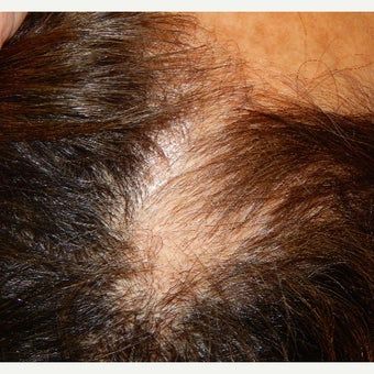 55-64 year old woman treated with Hair Loss Treatment before 1837661