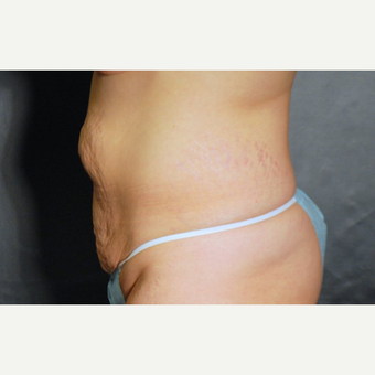 25-34 year old woman treated with Tummy Tuck before 3220337