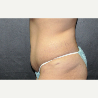 25-34 year old woman treated with Tummy Tuck after 3220337