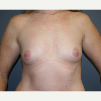 Breast Augmentation before 3037017