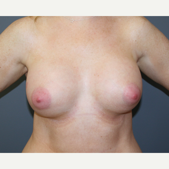 Breast Augmentation after 3037017