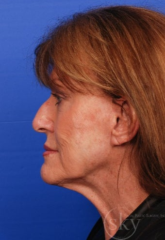 Cosmetic Rhinoplasty before 3037179
