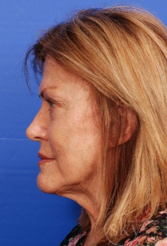 Cosmetic Rhinoplasty after 3037179
