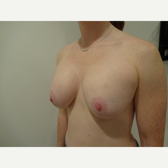25-34 year old female treated with Breast Augmentation after 3711819