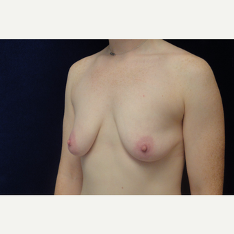 25-34 year old female treated with Breast Augmentation before 3711819