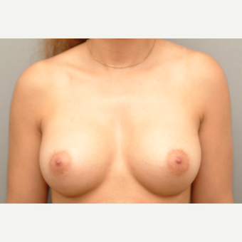 25-34 year old woman treated with Breast Implants after 3732357