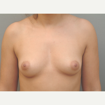 25-34 year old woman treated with Breast Implants before 3732357