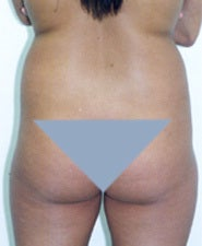 Before and After Photos of Liposuction Patient 1429008
