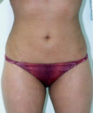 Before and After Photos of Liposuction Patient after 1429008