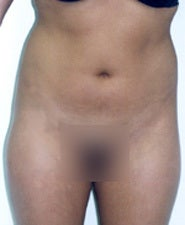 Before and After Photos of Liposuction Patient before 1429008