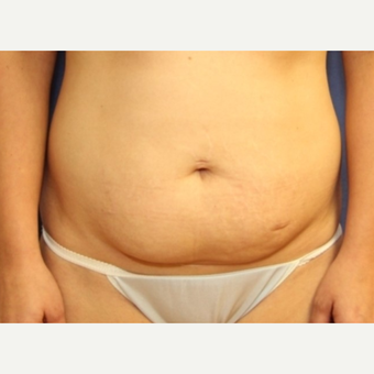 34 year old woman with a Tummy Tuck before 3076173