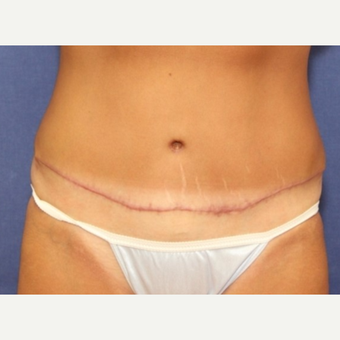 34 year old woman with a Tummy Tuck after 3076173