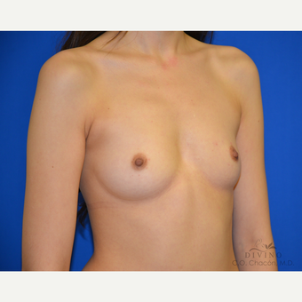 18-24 year old woman treated with Breast Augmentation before 3386460