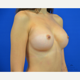 18-24 year old woman treated with Breast Augmentation after 3386460