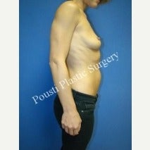 35-44 year old woman treated with Breast Implant Removal 1588286