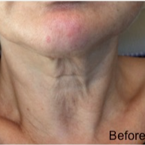 55-64 year old woman treated with Fractional Laser before 3174619