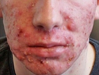 17 or under year old man treated with Accutane before 2019701
