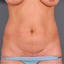27 Year Old Female with Liposuction: VASER Liposelection before 951222