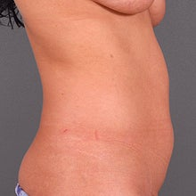 27 Year Old Female with Liposuction: VASER Liposelection 951222