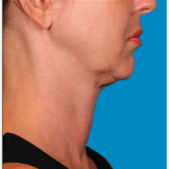 "45-54 year old woman treated with Kybella for corruption of sub mental fullness /""double chin"" before 2334995"
