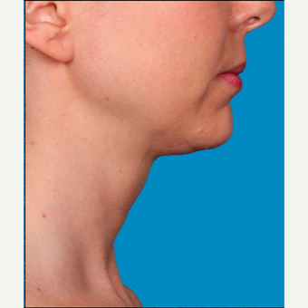 "45-54 year old woman treated with Kybella for corruption of sub mental fullness /""double chin"" after 2334995"