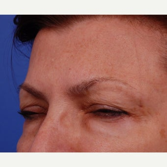 55-64 year old woman treated with Botox Treatment areas include Glabella, Crows Feet after 2345195