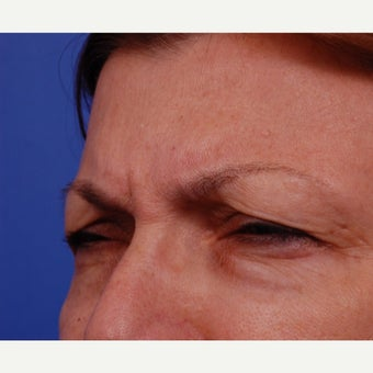 55-64 year old woman treated with Botox Treatment areas include Glabella, Crows Feet before 2345195